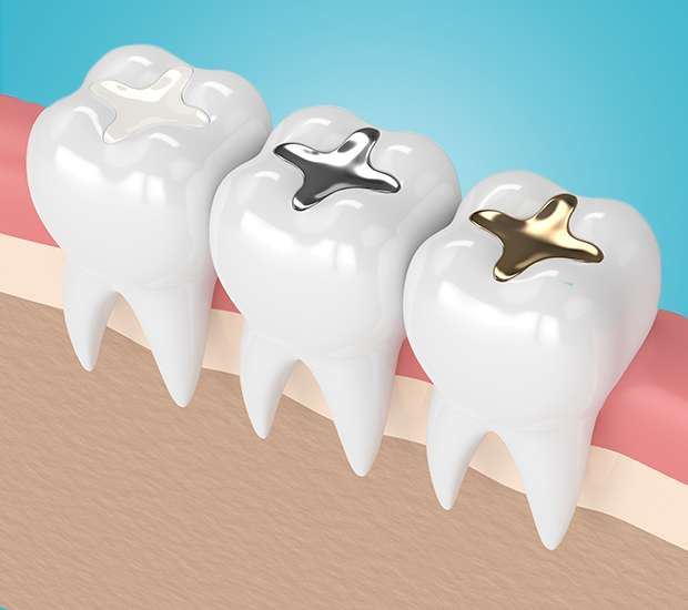 Downey Composite Fillings
