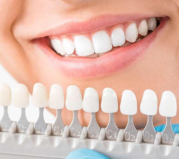 Downey Cosmetic Dentist