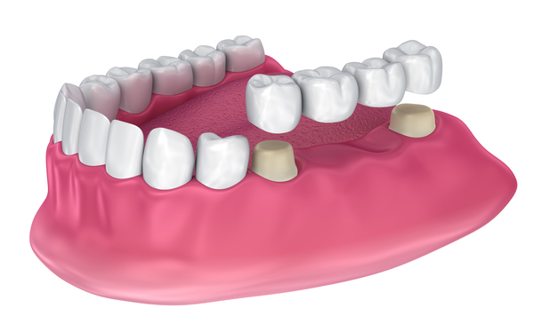 How Do Dental Bridges Work?