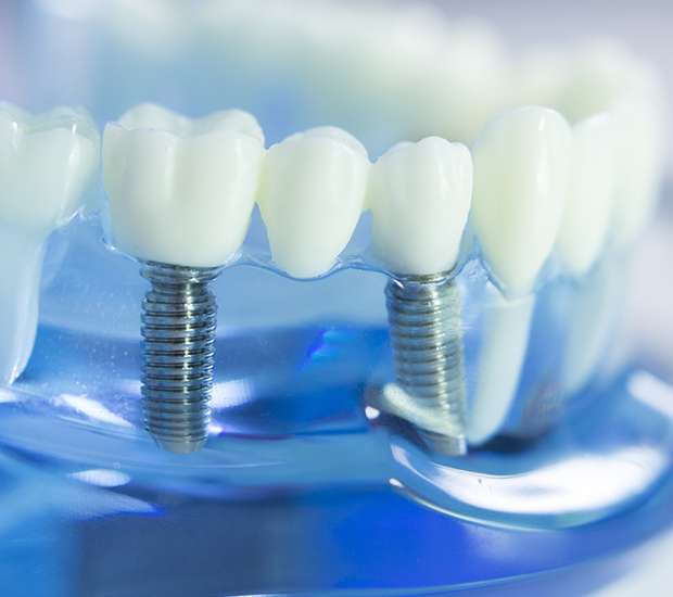 Downey Dental Implants