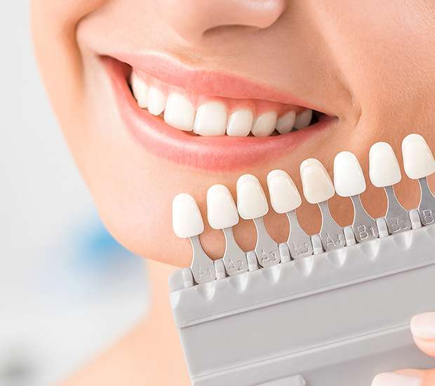 Downey Dental Veneers and Dental Laminates