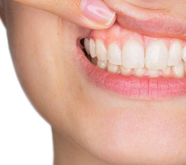Downey Gum Disease