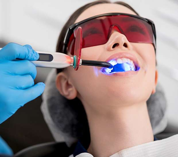 Downey Professional Teeth Whitening